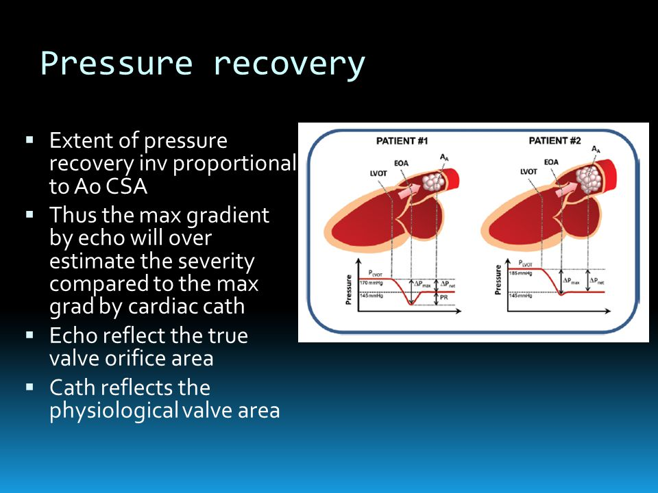 Pressure recovery Extent of pressure recovery inv proportional to Ao CSA.