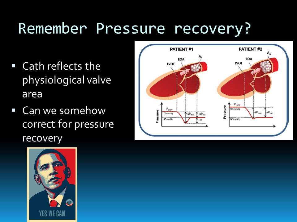 Remember Pressure recovery