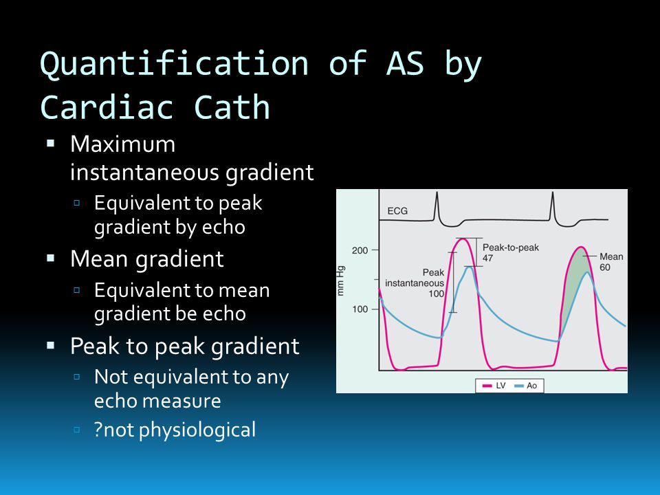 Quantification of AS by Cardiac Cath