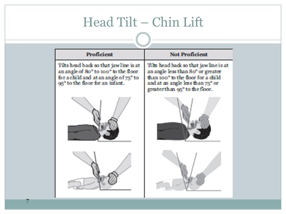 Head Tilt – Chin Lift