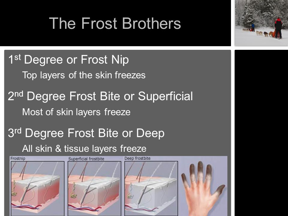 The Frost Brothers 1st Degree or Frost Nip