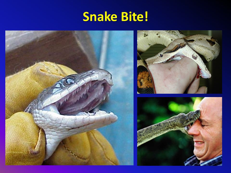 Snake Bite! Very sharp teeth! Some species have rear fangs