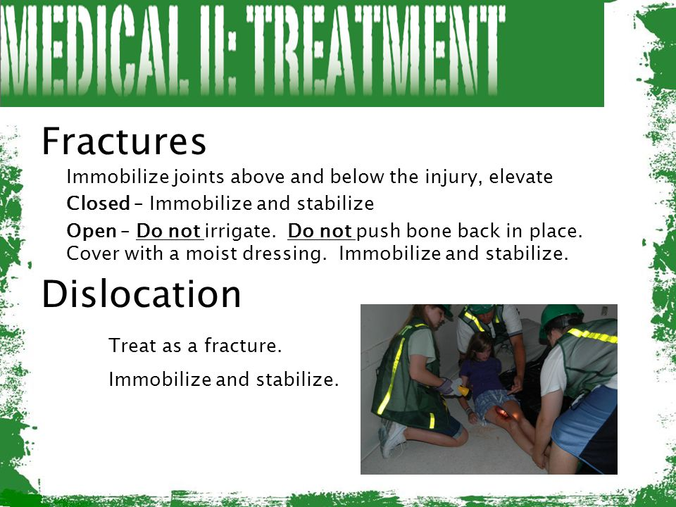 Fractures Immobilize joints above and below the injury, elevate