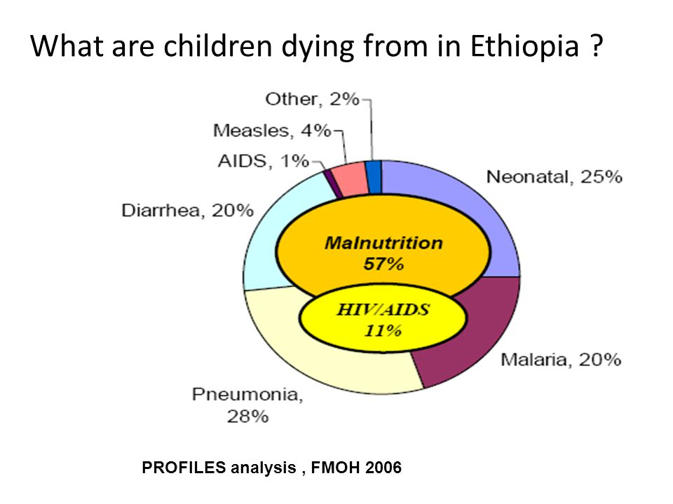 What are children dying from in Ethiopia