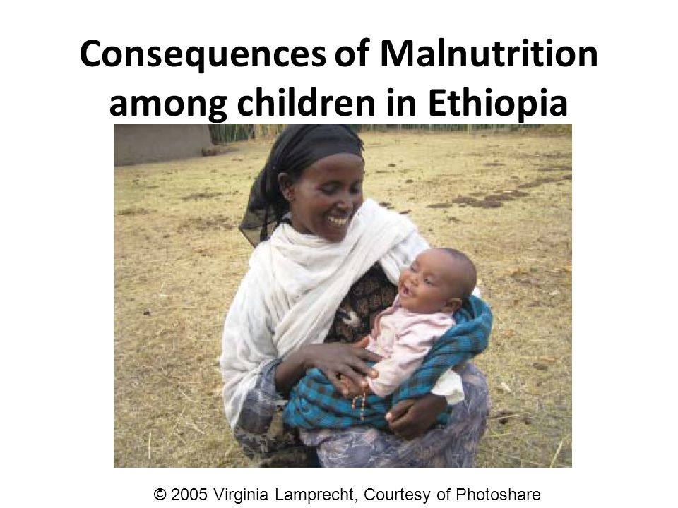Consequences of Malnutrition among children in Ethiopia