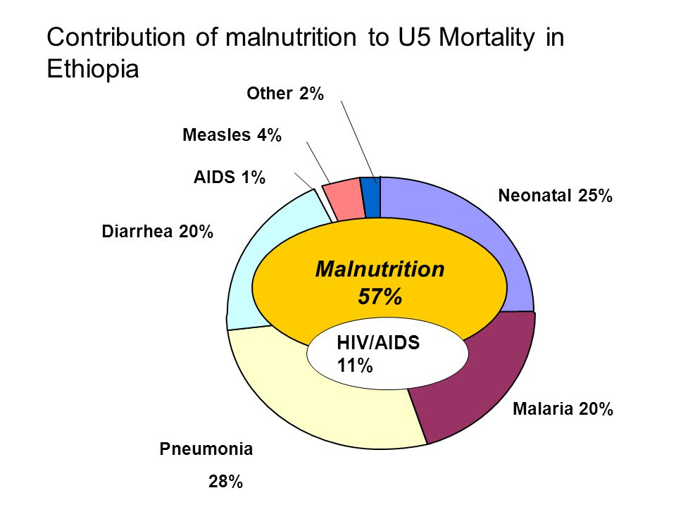Contribution of malnutrition to U5 Mortality in Ethiopia