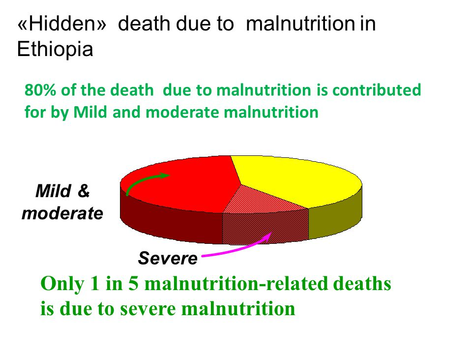 «Hidden» death due to malnutrition in Ethiopia