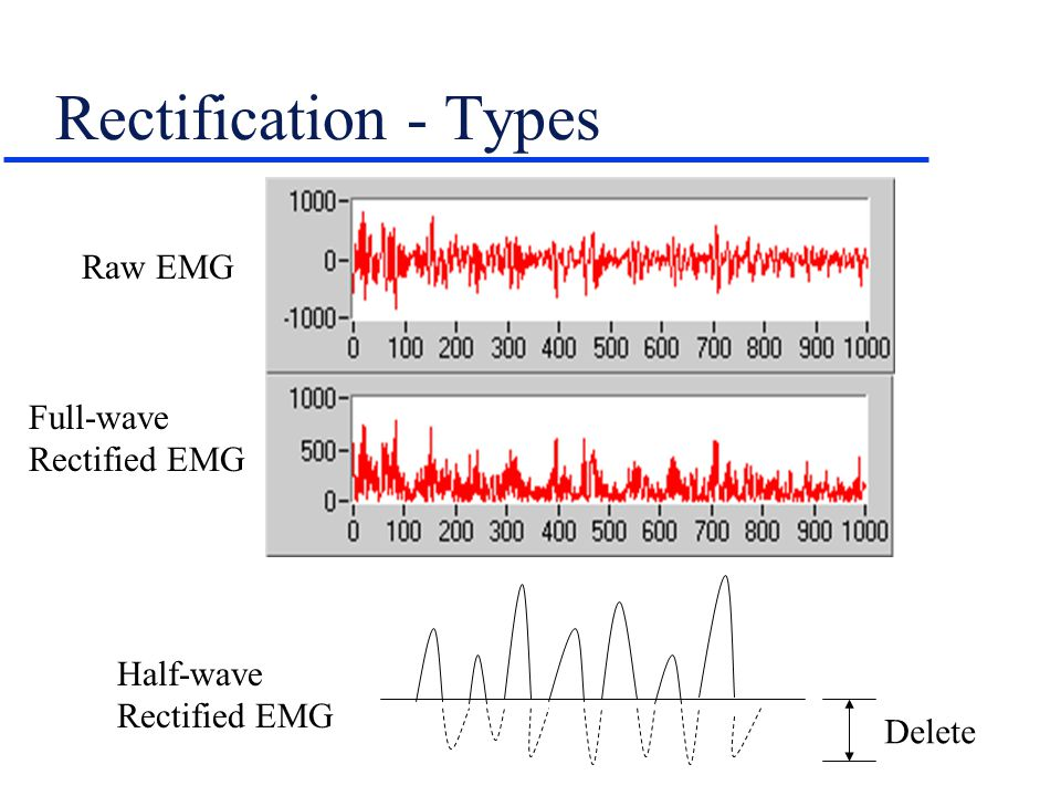 Rectification - Types Raw EMG Full-wave Rectified EMG Half-wave