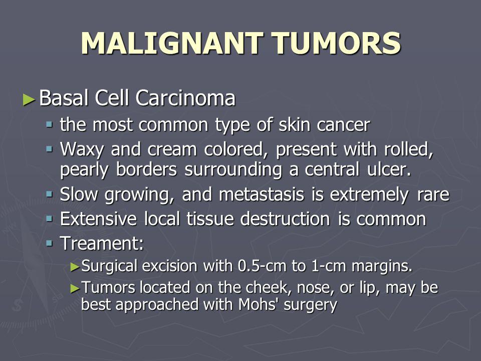 MALIGNANT TUMORS Basal Cell Carcinoma