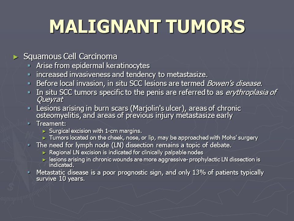MALIGNANT TUMORS Squamous Cell Carcinoma