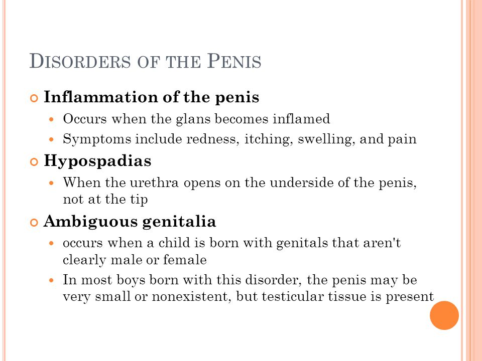 Disorders of the Penis Inflammation of the penis Hypospadias