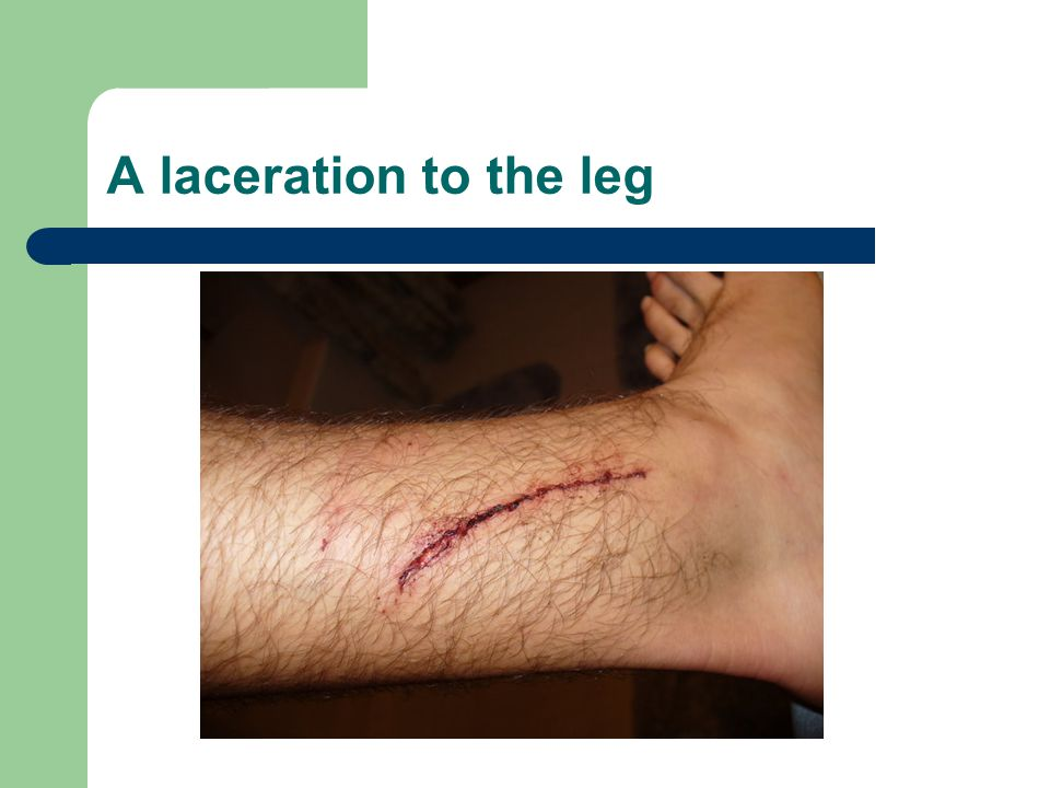 A laceration to the leg