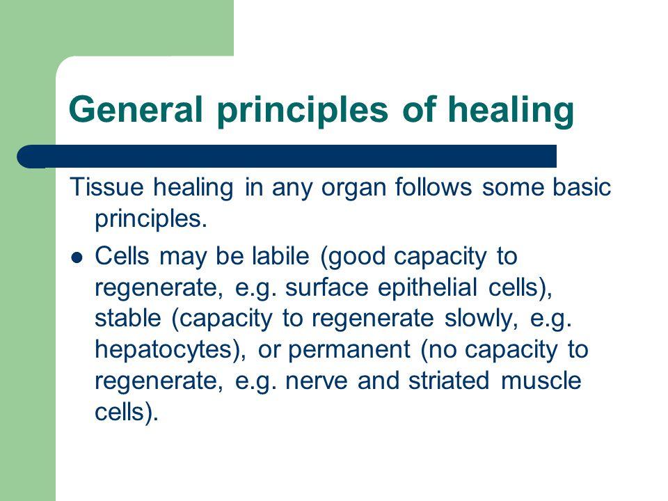 General principles of healing