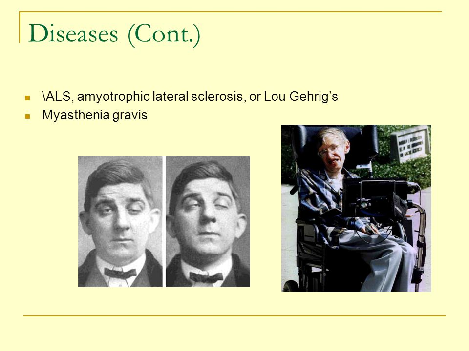 Diseases (Cont.) \ALS, amyotrophic lateral sclerosis, or Lou Gehrig's