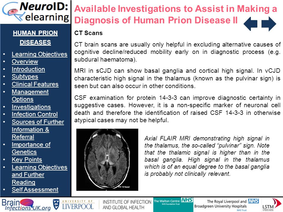 Available Investigations to Assist in Making a Diagnosis of Human Prion Disease II