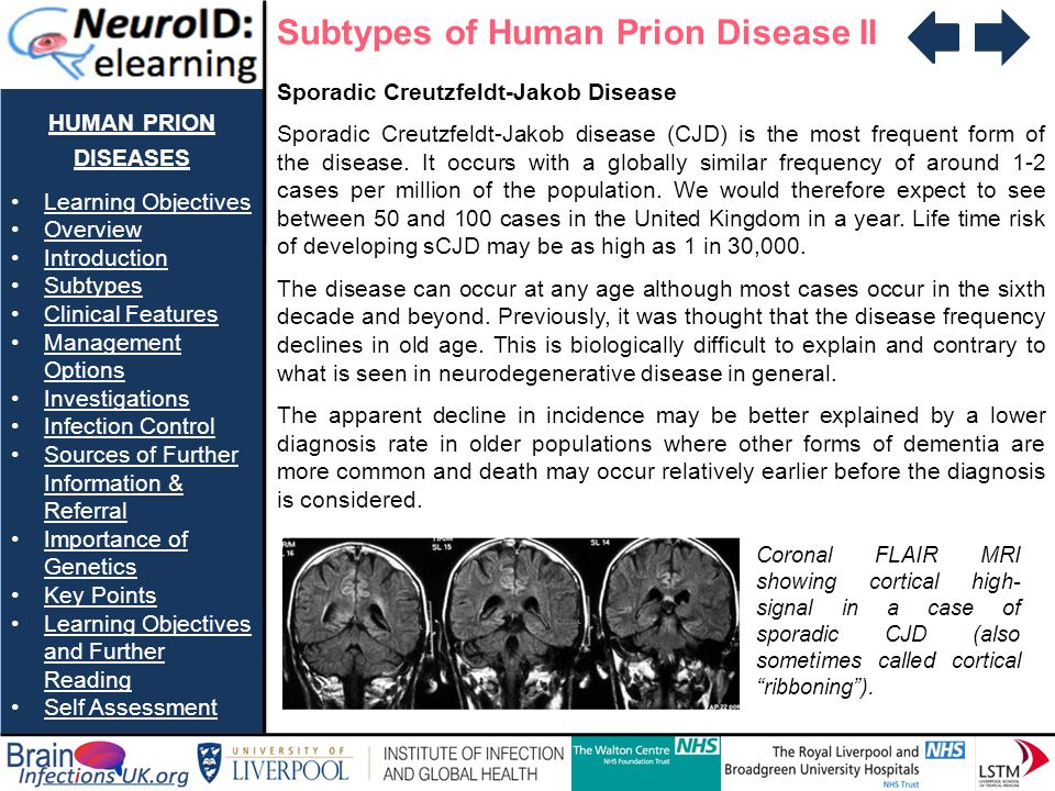 Subtypes of Human Prion Disease II