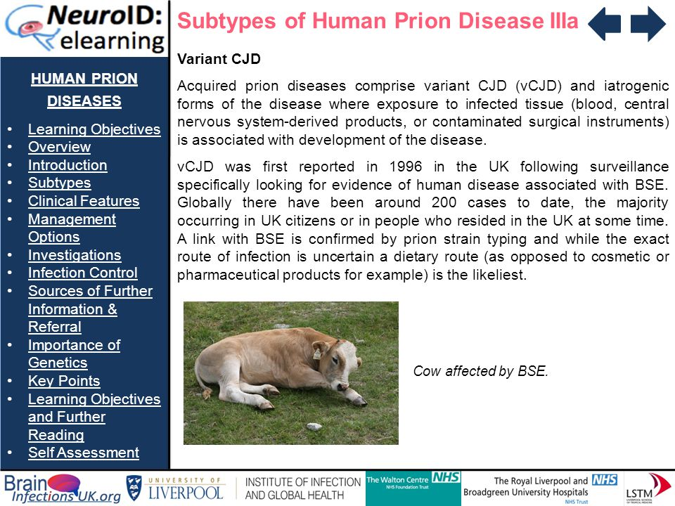 Subtypes of Human Prion Disease IIIa