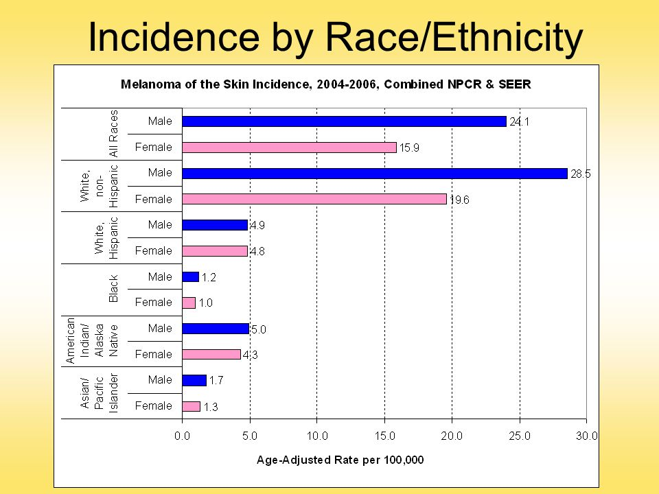 Incidence by Race/Ethnicity