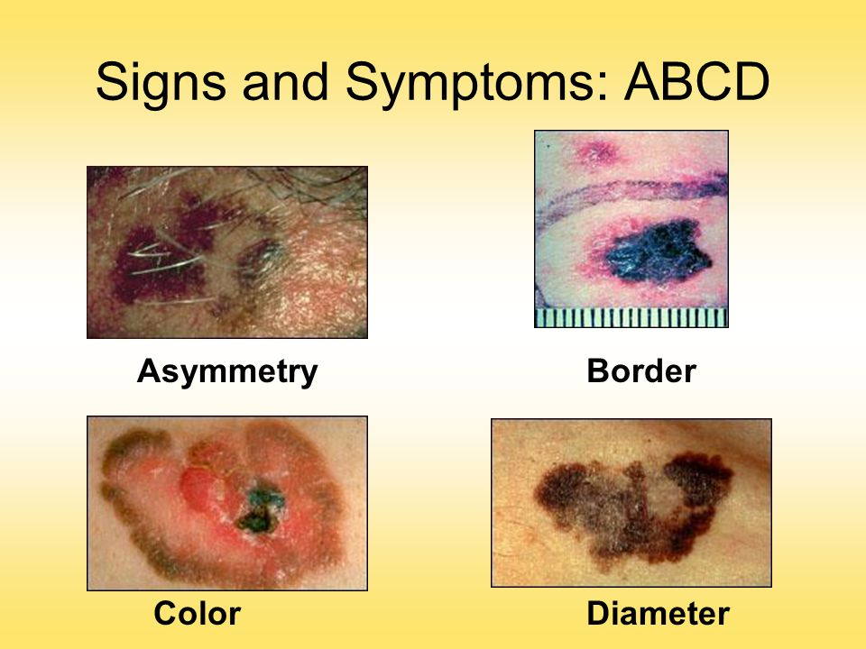 Signs and Symptoms: ABCD