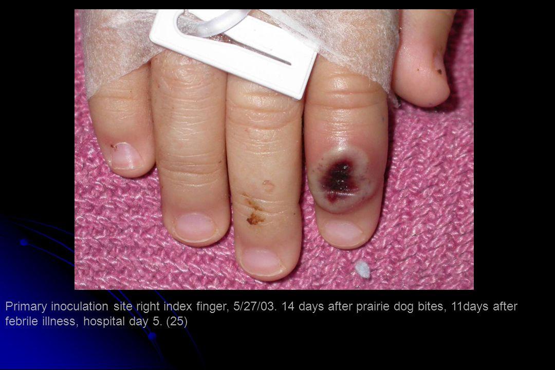 Primary inoculation site right index finger, 5/27/03