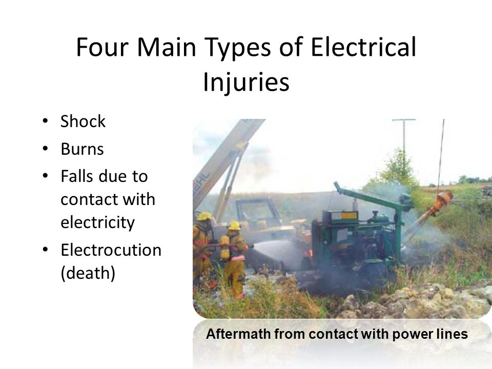 Four Main Types of Electrical Injuries
