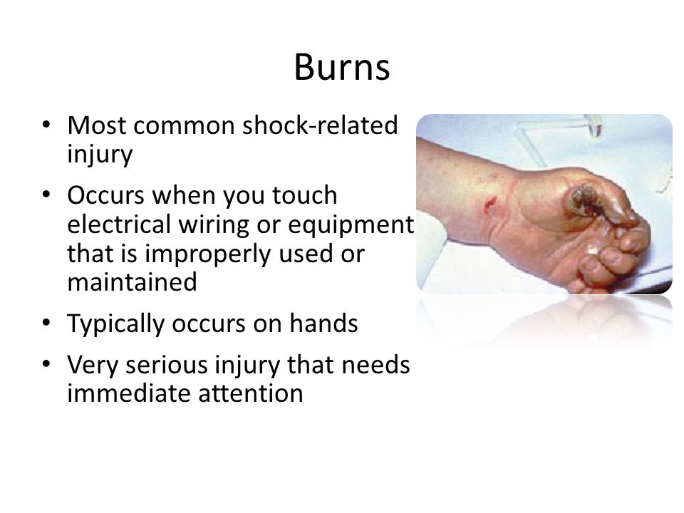 Burns Most common shock-related injury