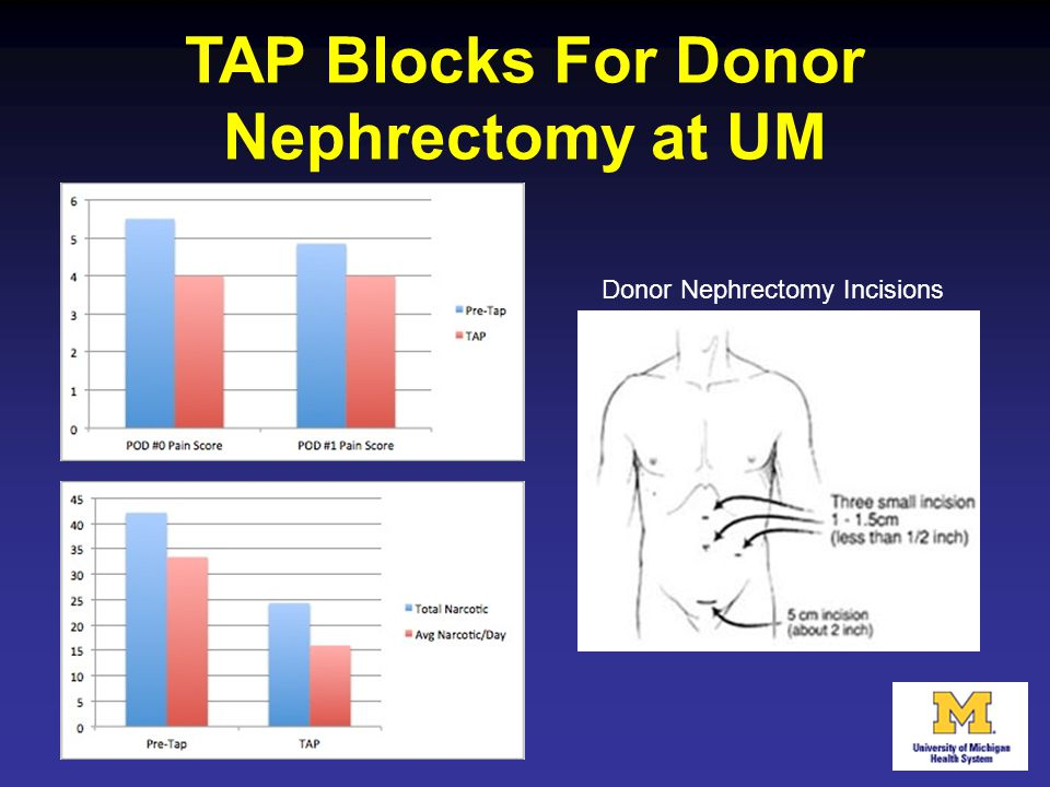 TAP Blocks For Donor Nephrectomy at UM