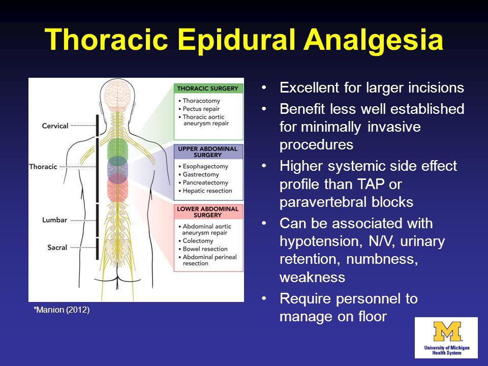 Thoracic Epidural Analgesia