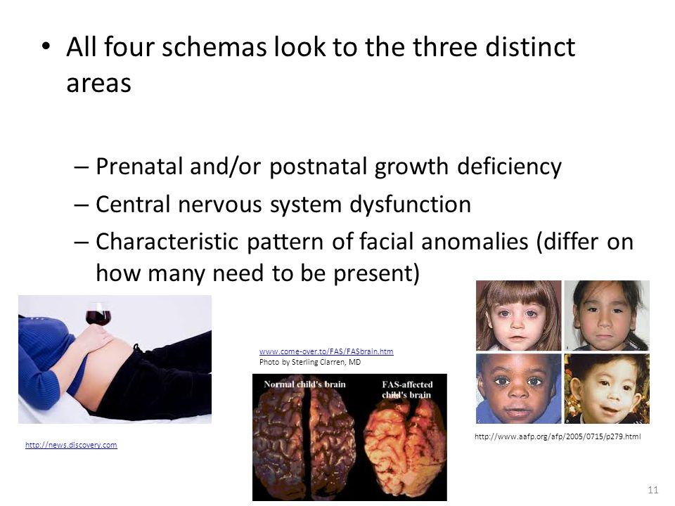 All four schemas look to the three distinct areas