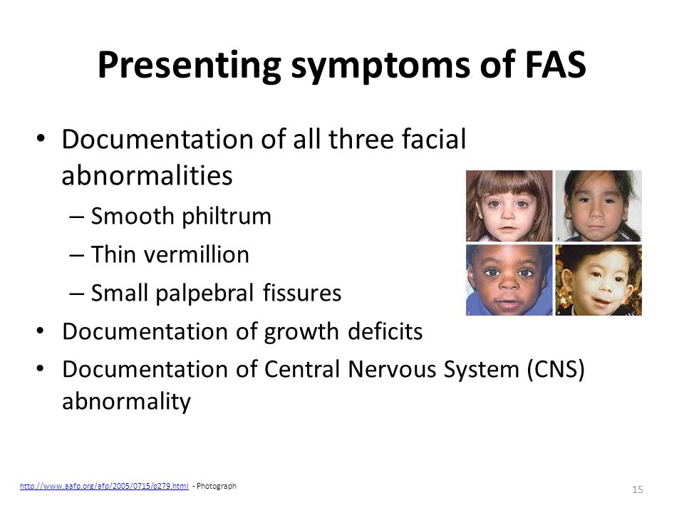 Presenting symptoms of FAS