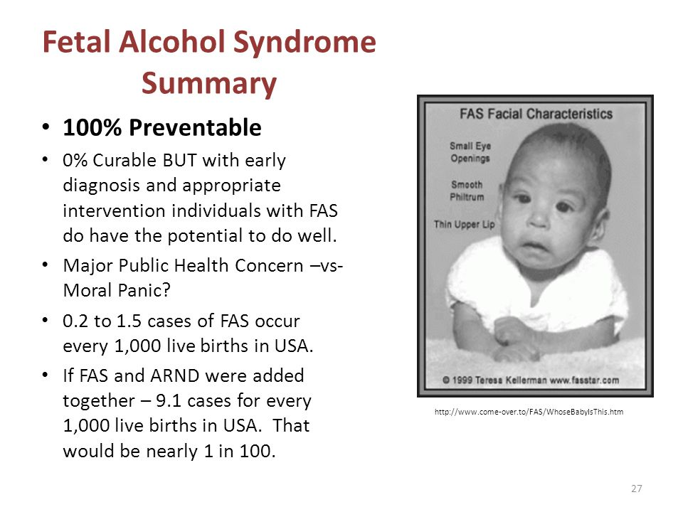 Fetal Alcohol Syndrome Summary