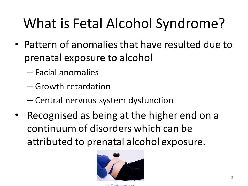 What is Fetal Alcohol Syndrome