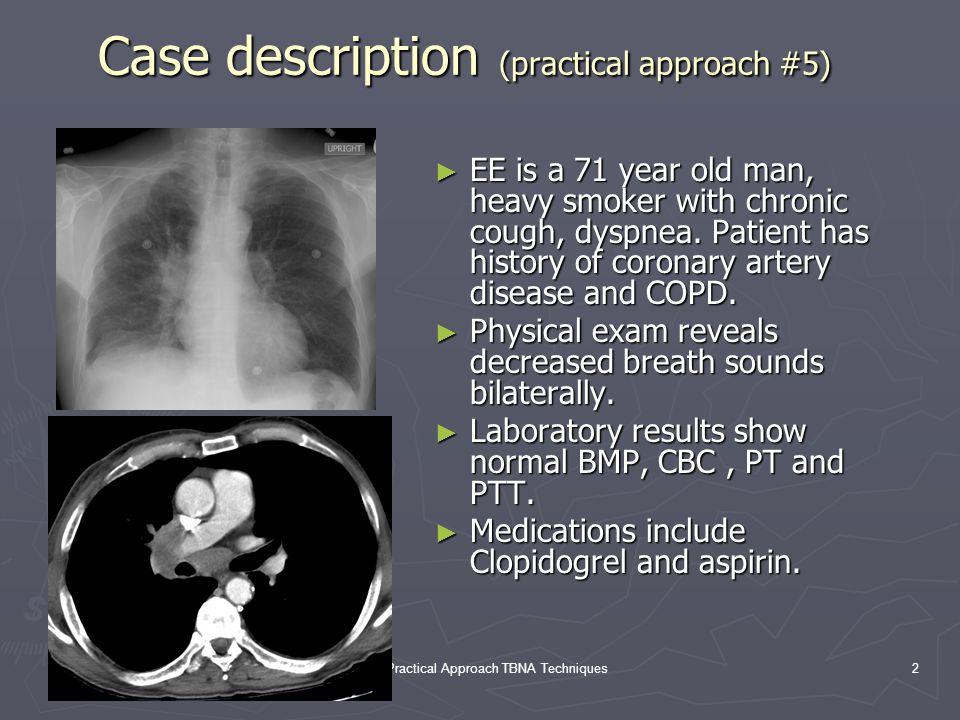 Case description (practical approach #5)