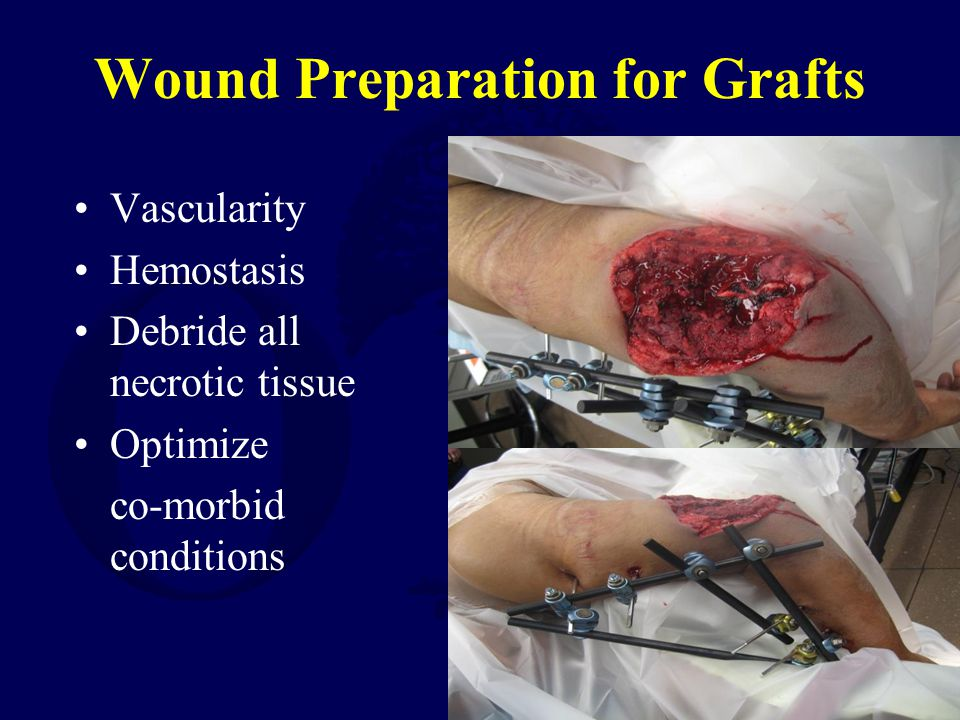 Wound Preparation for Grafts