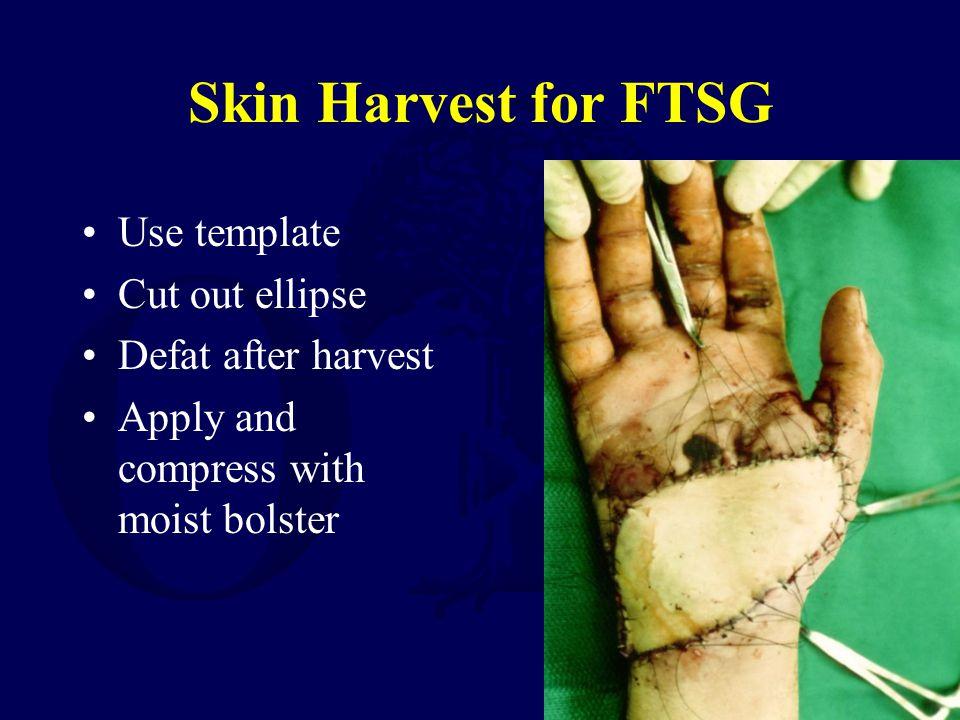 Skin Harvest for FTSG Use template Cut out ellipse Defat after harvest
