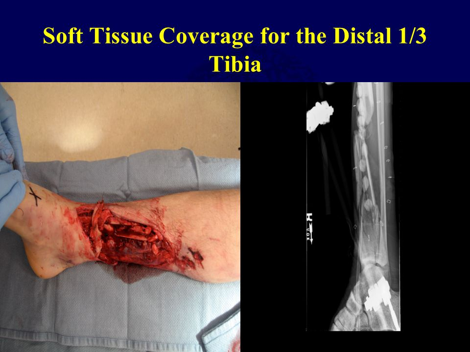 Soft Tissue Coverage for the Distal 1/3 Tibia