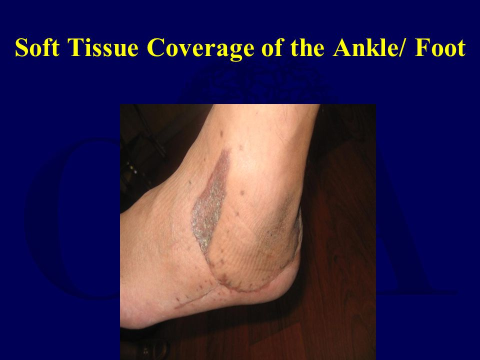 Soft Tissue Coverage of the Ankle/ Foot