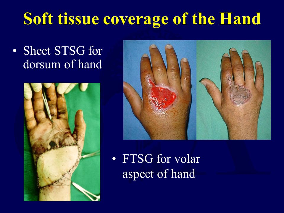 Soft tissue coverage of the Hand