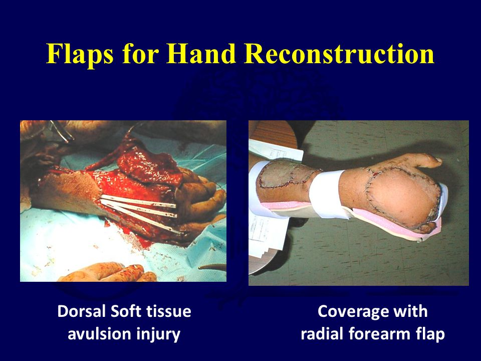 Flaps for Hand Reconstruction