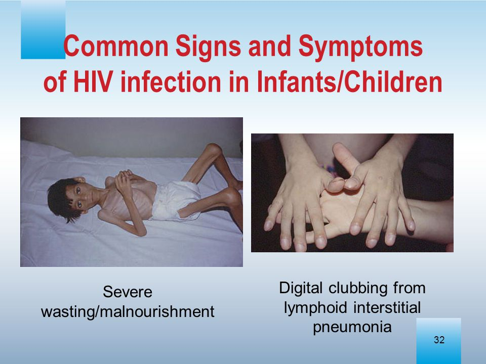 Common Signs and Symptoms of HIV infection in Infants/Children
