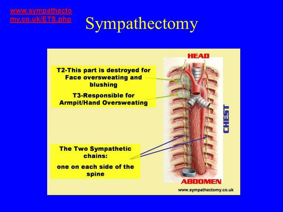 www.sympathectomy.co.uk/ETS.php Sympathectomy