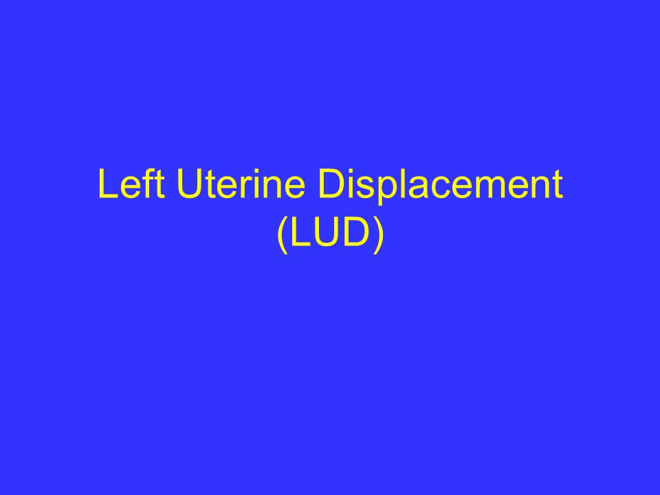 Left Uterine Displacement (LUD)