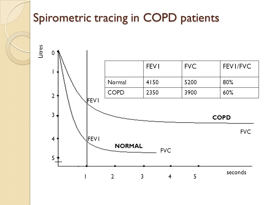 Spirometric tracing in COPD patients