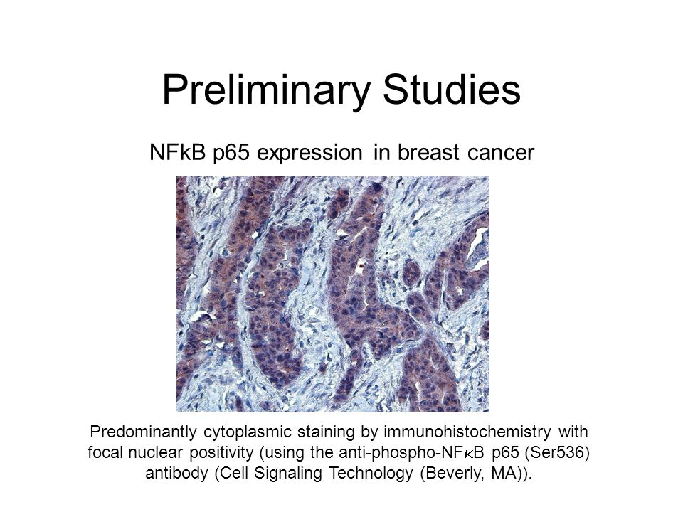 Preliminary Studies NFkB p65 expression in breast cancer