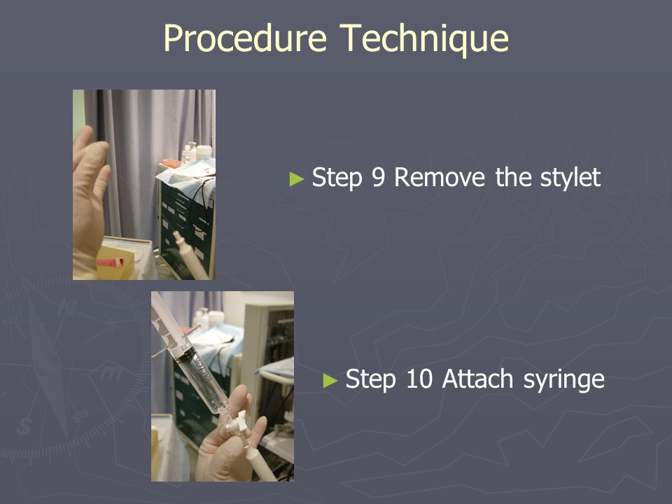 Procedure Technique Step 9 Remove the stylet Step 10 Attach syringe