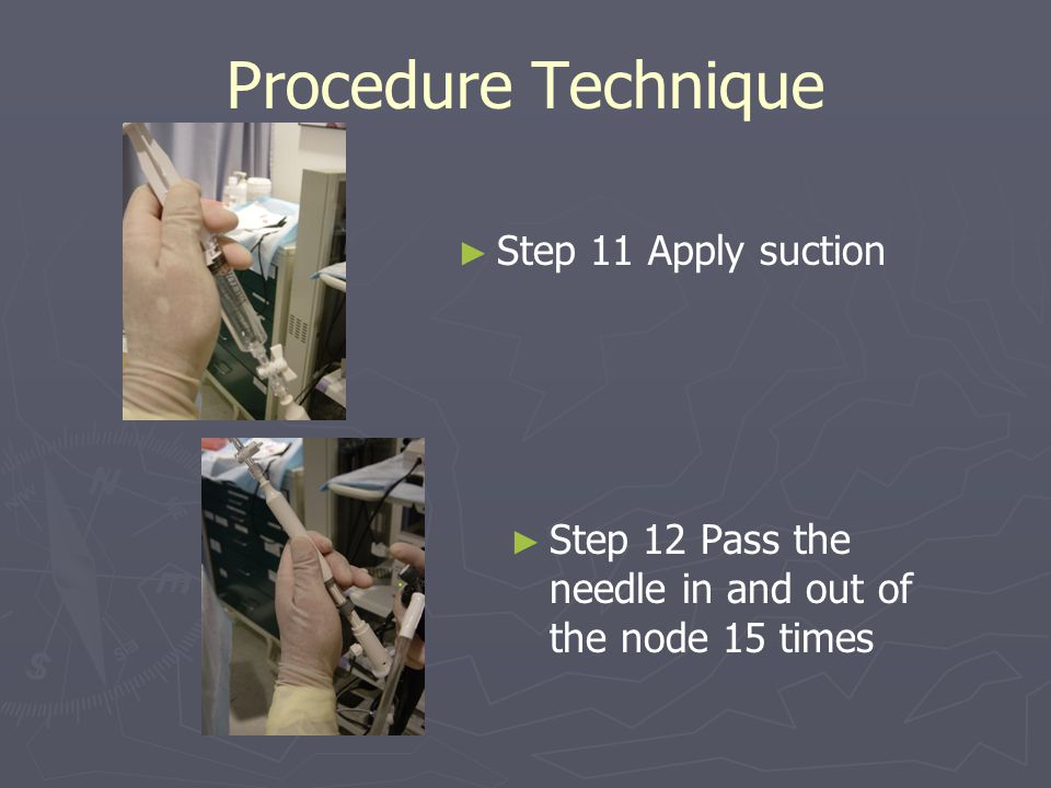 Procedure Technique Step 11 Apply suction