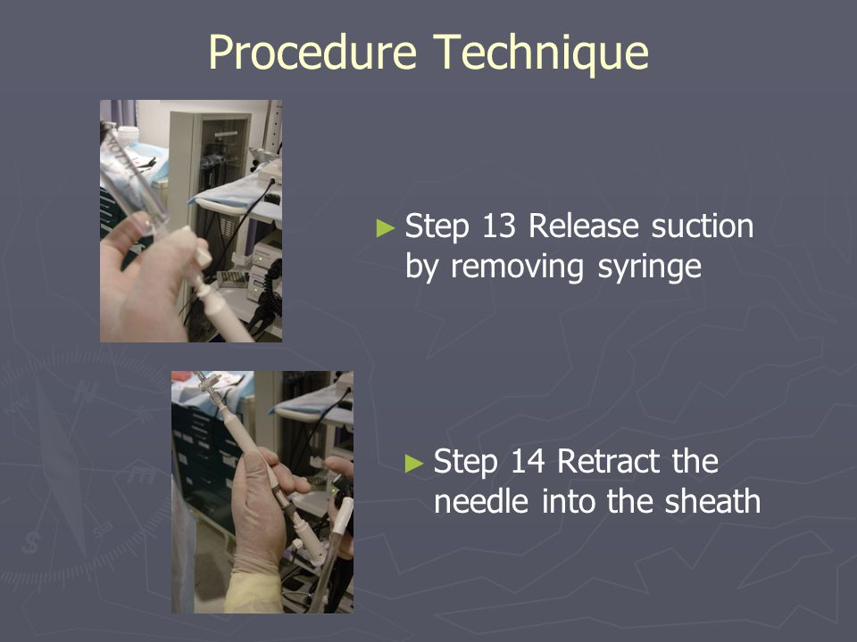 Procedure Technique Step 13 Release suction by removing syringe