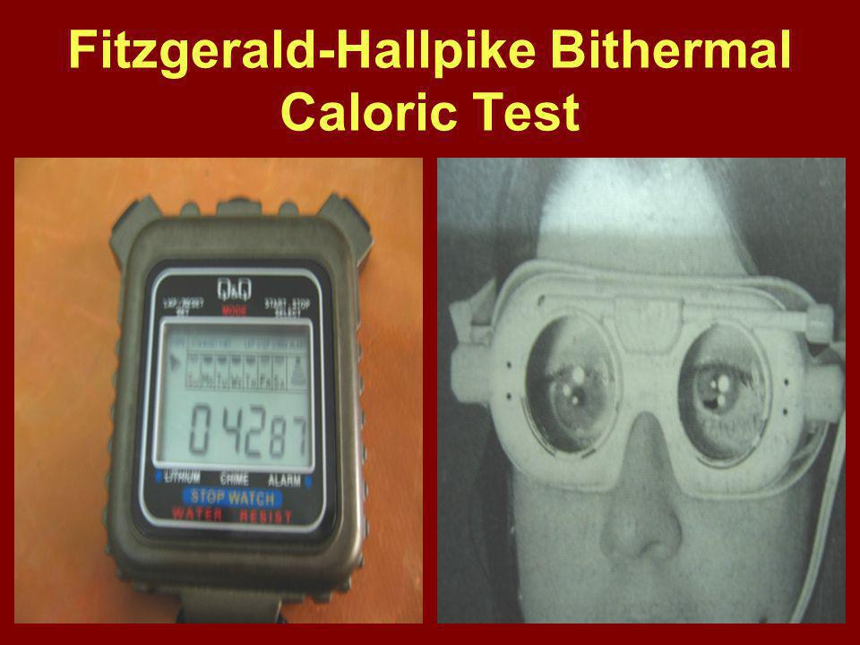 Fitzgerald-Hallpike Bithermal Caloric Test