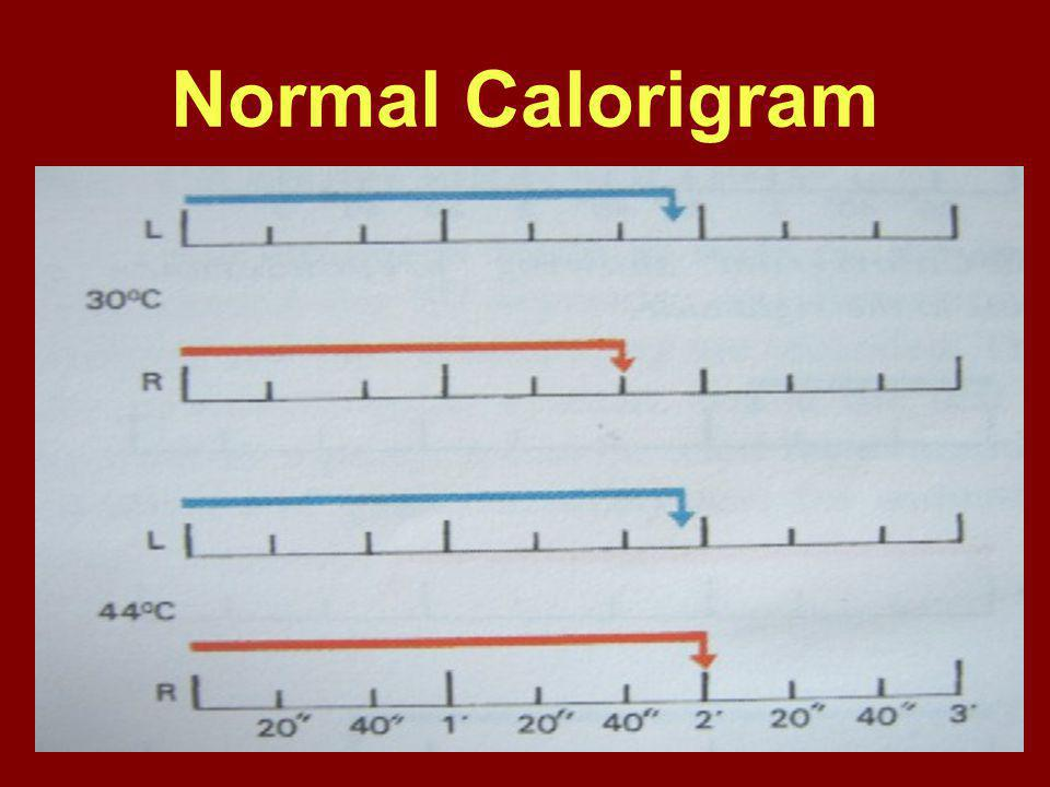 Normal Calorigram