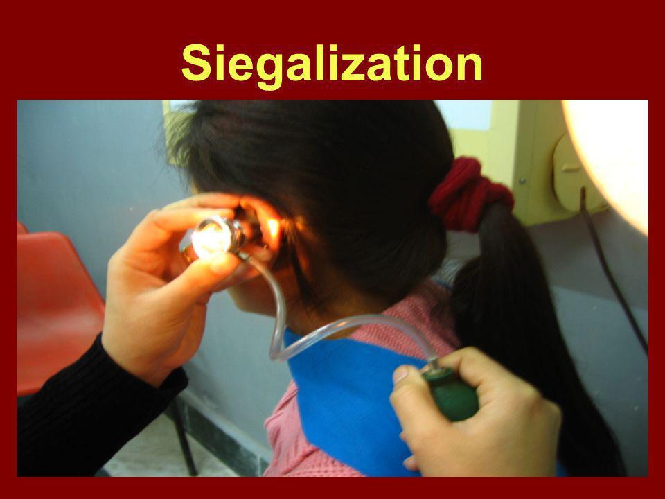 Siegalization